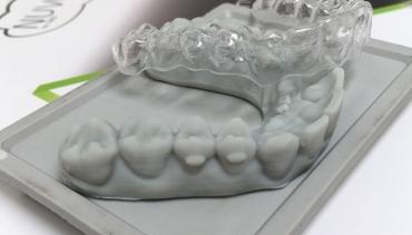 Ortodonzia (apparecchi)