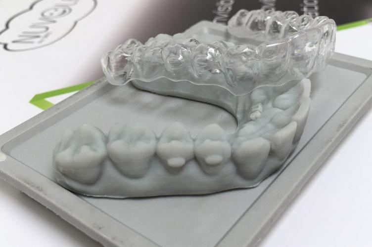 ortodonzia_IMG_6155