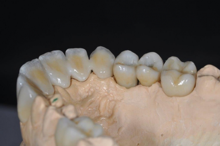 protesi_paziente1_3